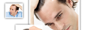 Body Hair Transplant By FUE